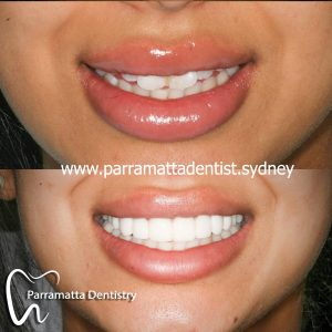We are the best dentistry in Parramatta.