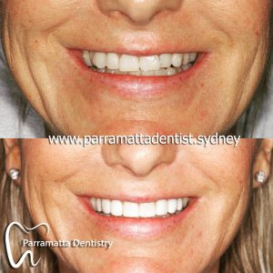We are the best dentistry for composite veneers in Parramatta.