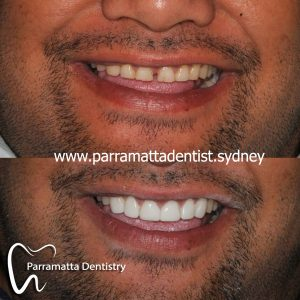 We are the best cosmetic dentistry in Parramatta.
