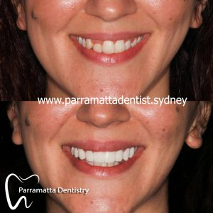 We are the experts of cosmetic dentistry in Parramatta.
