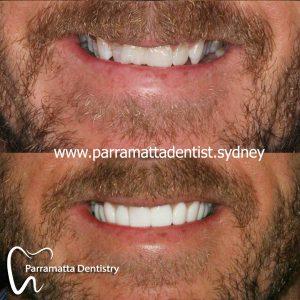 We provide the best dental veneers in Parramatta.