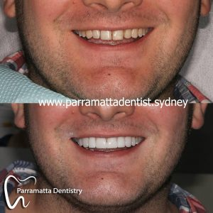 We are the experts of dental veneers in Parramatta.