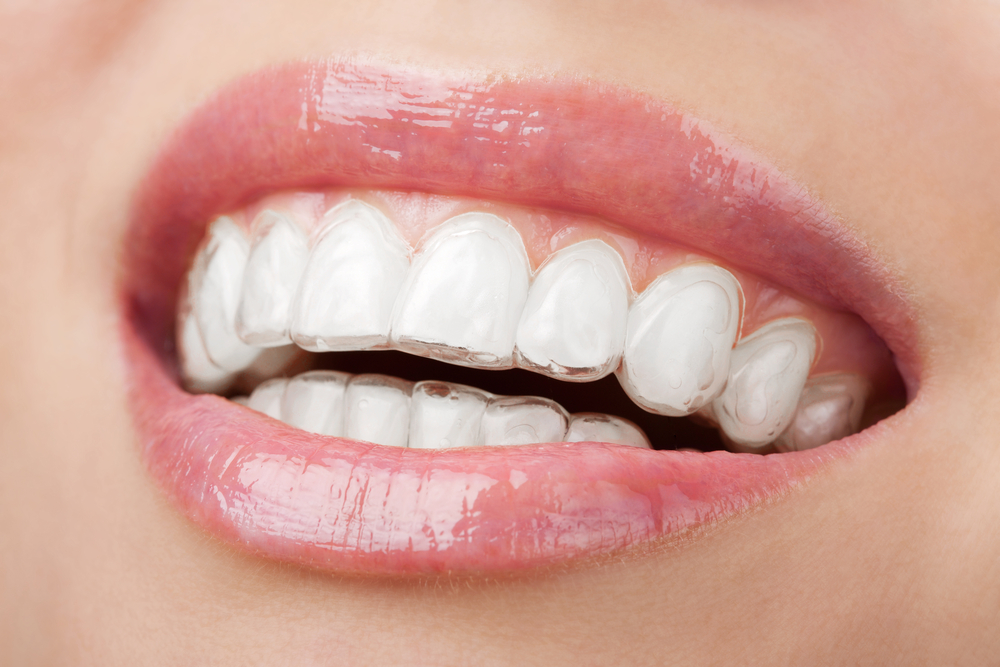 We are the best dentistry for Invisalign in Parramatta.