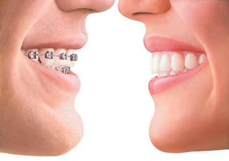 We have the best Orthodontics in Parramatta.