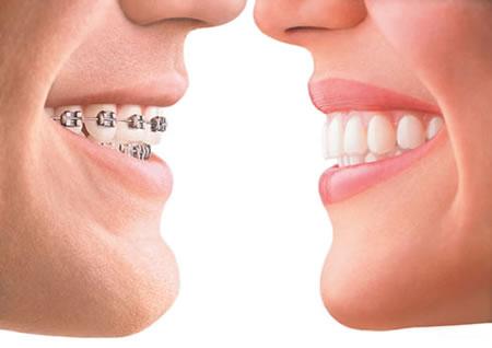 We have the best Orthodontics in Parramatta.