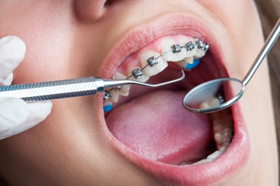 We have the best Orthodontist here in Parramatta.