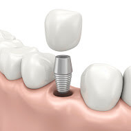 We have the best dentist for dental implants in Parramatta.