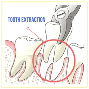 Tooth Removal is done by our expert dentist in Parramatta
