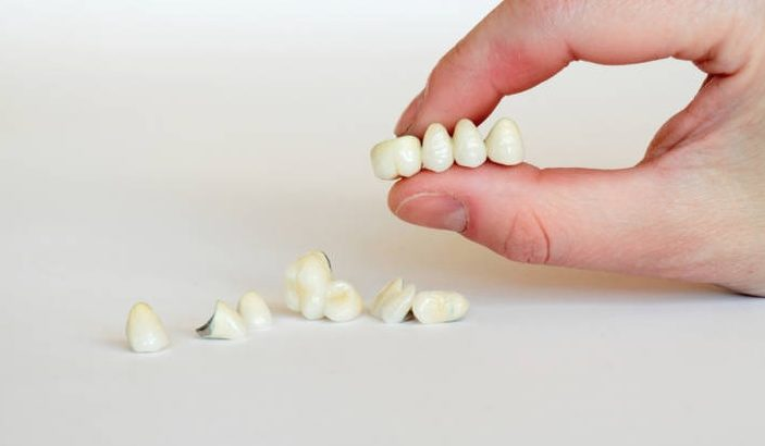 We have the best dental crowns in Parramatta.