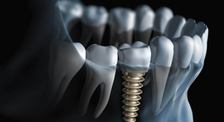 We have the best dental implant in Parramatta.