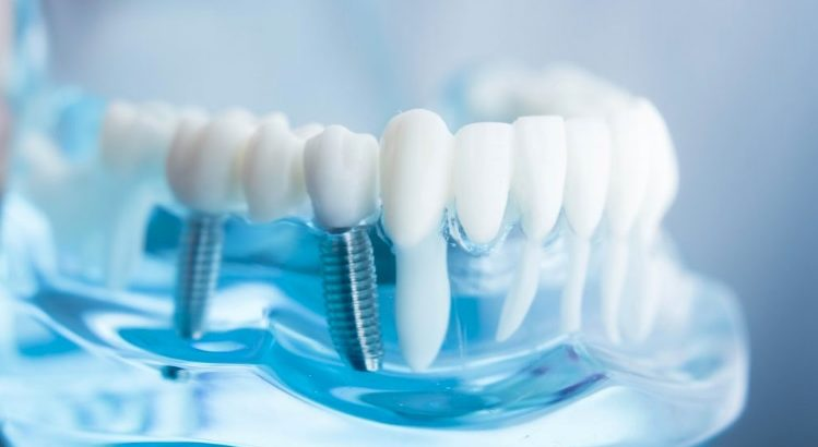 We have the best dentist for dental implant in Parramatta.