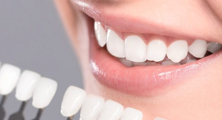 We have the best dental veneers in Parramatta.