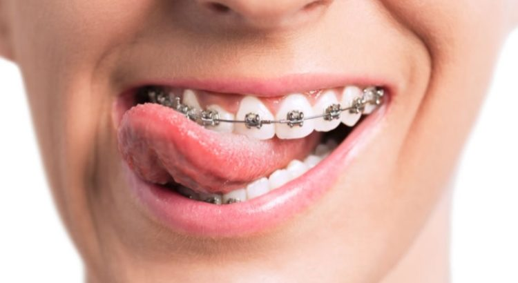 We have the best orthodontist in Parramatta.