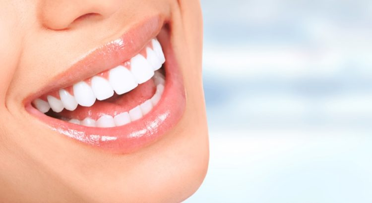 We have affordable teeth whitening in Parramatta.