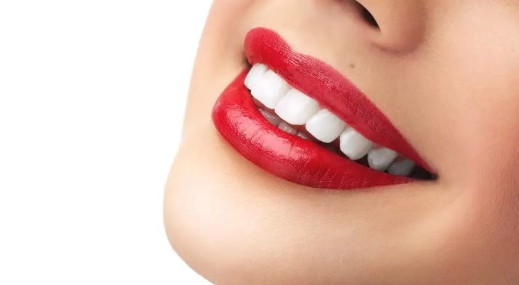 The best teeth whitening in Parramatta.