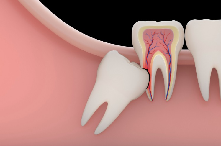 We are the best in wisdom tooth removal here in Parramatta.