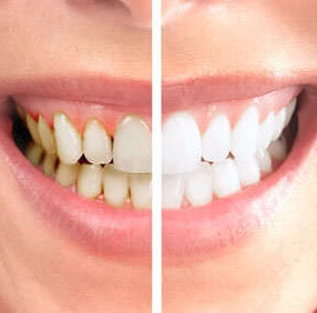 laser teeth whitening Parramatta