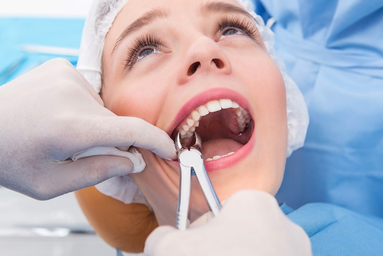 Tooth removal in Parramatta