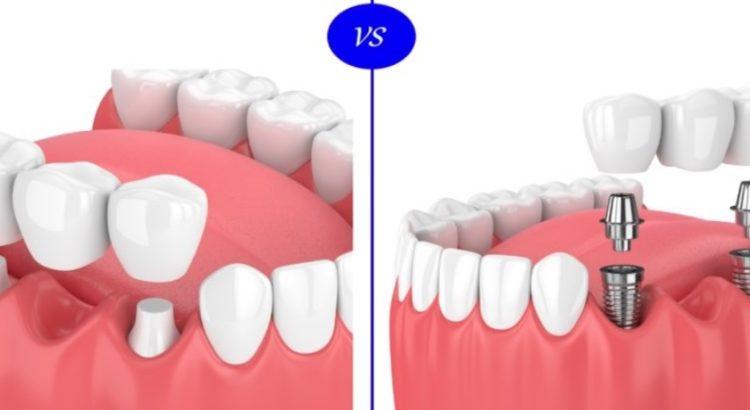 tooth implant vs bridge in Parramatta