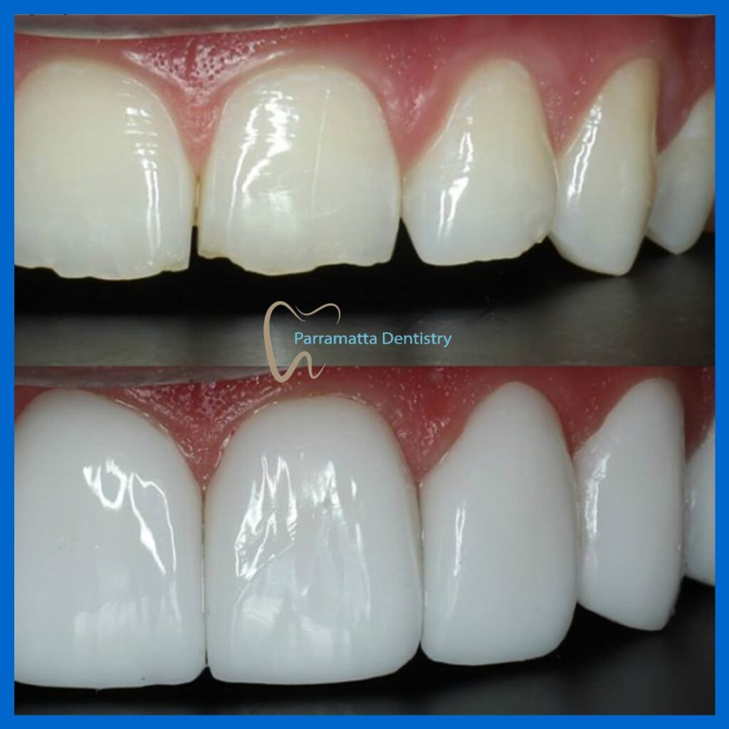 Porcelain veneers in Parramatta